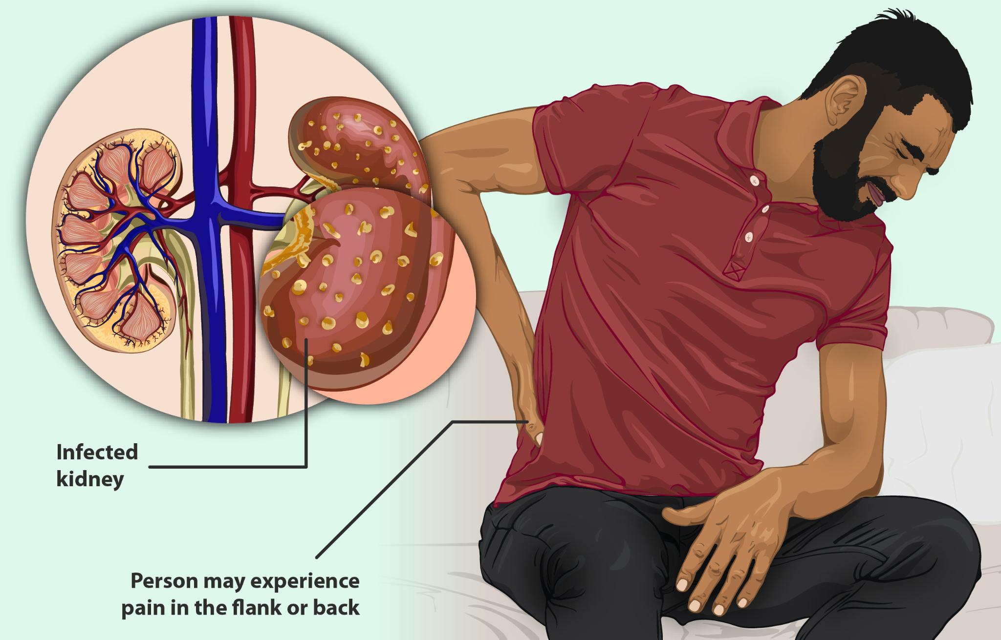 Factors that Damage the Kidneys